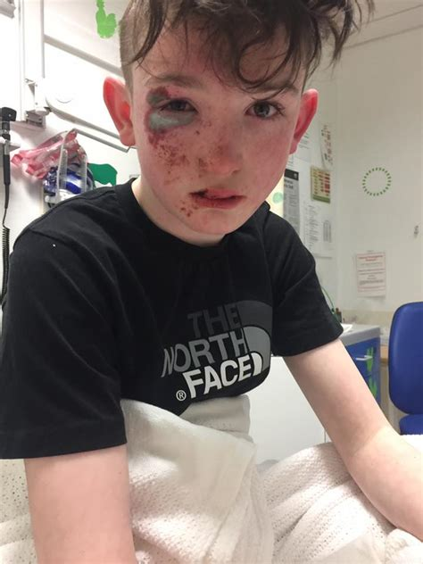 Aberdeen acid attack: Two young boys hospitalised after