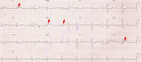 Acute lateral myocardial infarction - before tPA infusion