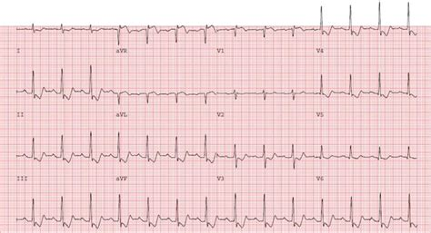 Non-ST Elevation Myocardial Infarction: Diagnosis and