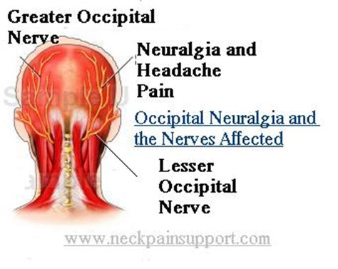 Natural Occipital Neuralgia treatment discovered by Chance